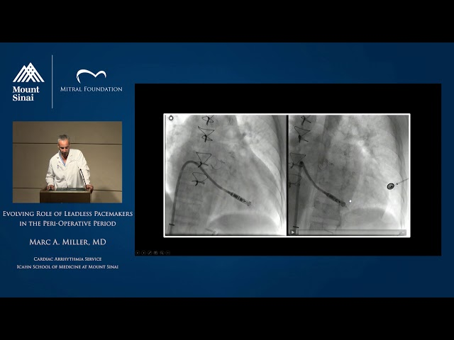 Evolving Role of Leadless Pacemakers in the Peri-operative Period