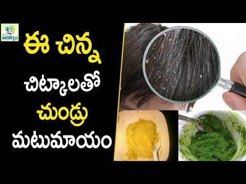 Dandruff Treatment at Home - Hair care Tips In Telugu -- Mana Arogyam - 동영상