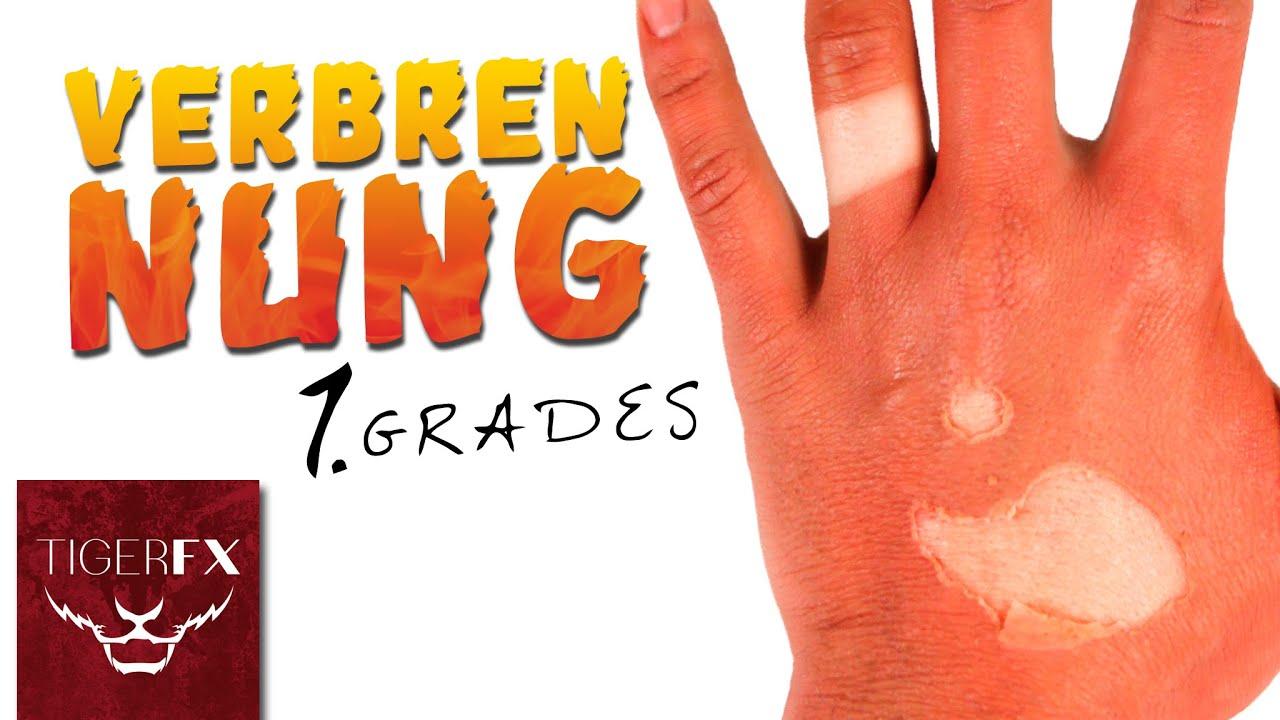 Sonnenbrand 3. Grades