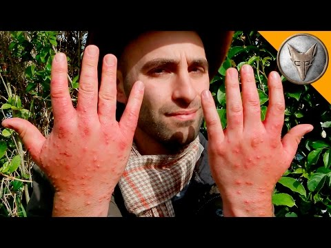 Thumbnail: Worst Insect Stings EVER!