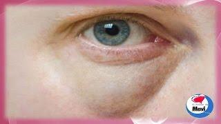 Mejillas y las de hinchazón ojos debajo los