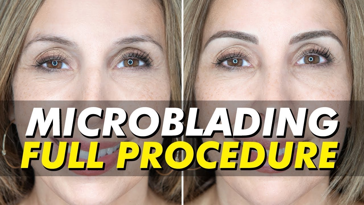 Before After Brow Transformation Microblading For Patchy