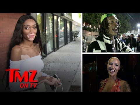 Winnie Harlow Loves Amber Rose Even Though She's Dating Wiz | TMZ TV