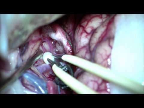 Brain Aneurysm Open Surgery