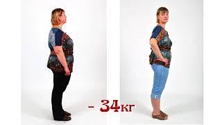 постер к видео Жанна похудела на 34 кг у диетолога Бобровского