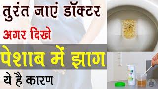 पेशाब में झाग आने का क्या कारण है | Foam in Urine Causes, Symptoms and Treatment in Hindi