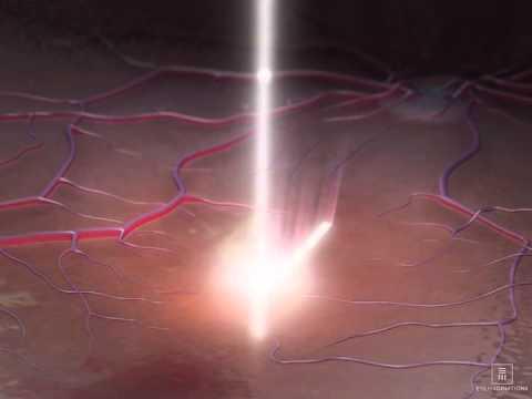 Prevent Eye Diseases with regular eye scanning (OCT test ...