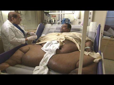 Самые толстые люди в мире(ужасные фото)