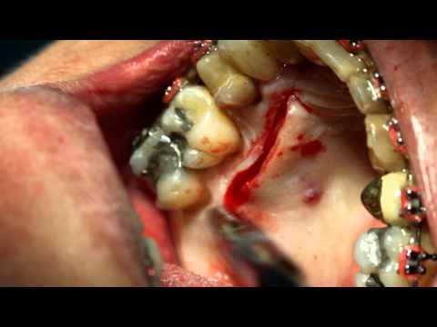 Видео Técnica de tunelização para enxertos conjuntivos