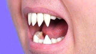 Surprise Sharp Teeth Grow!