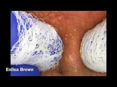 Filament, Ingrown Hair and Blackheads: Short and Sweet Video of Daryl