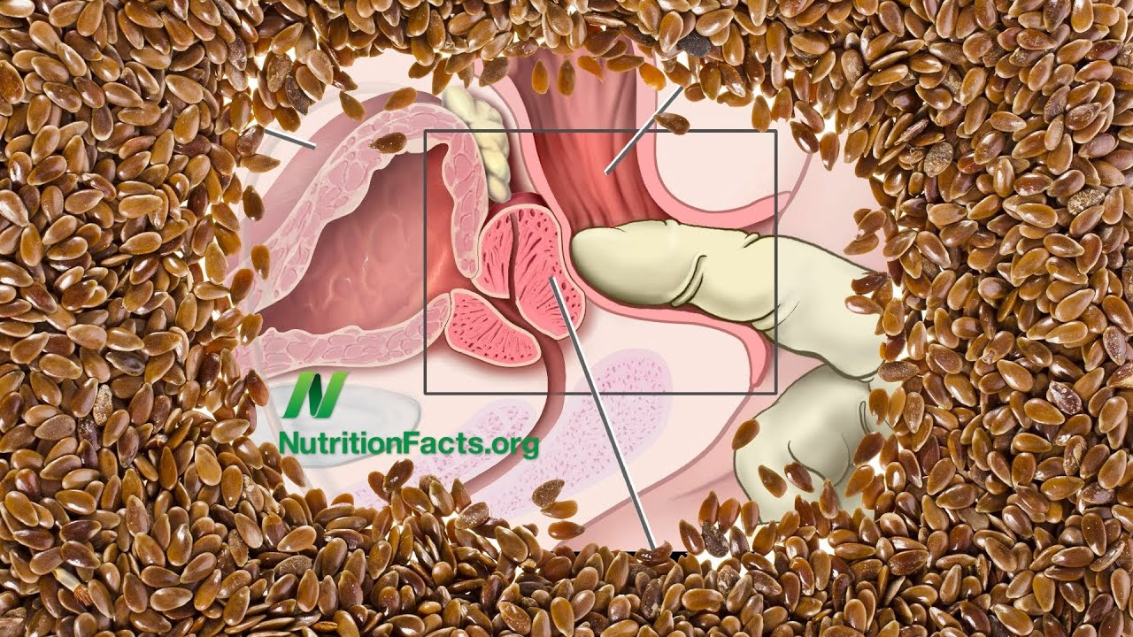Flax Seeds vs  Prostate Cancer | NutritionFacts org