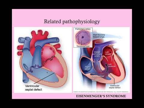 Cardiac Disease in Pregnancy - CRASH! Medical Review Series