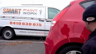 Dent Repair on Hyundai i30 by Smart PaintWorx