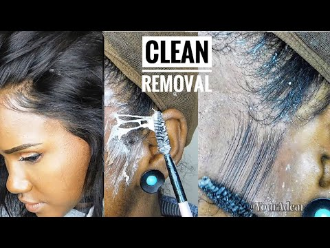 GLUED WIG TAKE DOWN |Detailed how to remove Wig GLUE