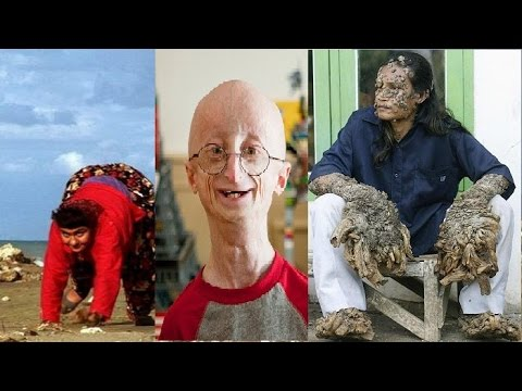 10 most bizarre genetic mutations in humans alltimetop youtube