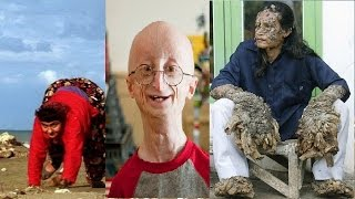 10 Most Bizarre Genetic Mutations in Humans - AllTimeTop
