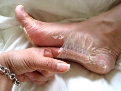 Vaginal Skin Peeling: Causes And Home Remedies For Va