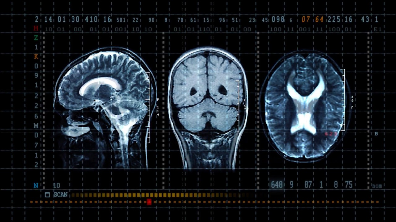 Stroke and Cerebrovascular Care | St  Louis MO