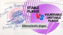 Stable Plaque VS Vulnerable/Unstable Plaque | Atherosclerotic plaques.