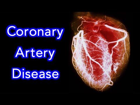 Coronary Artery Disease (CAD) Animation - MADE EASY