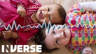 Why Babies Laugh Like Chimps More Than People | Inverse