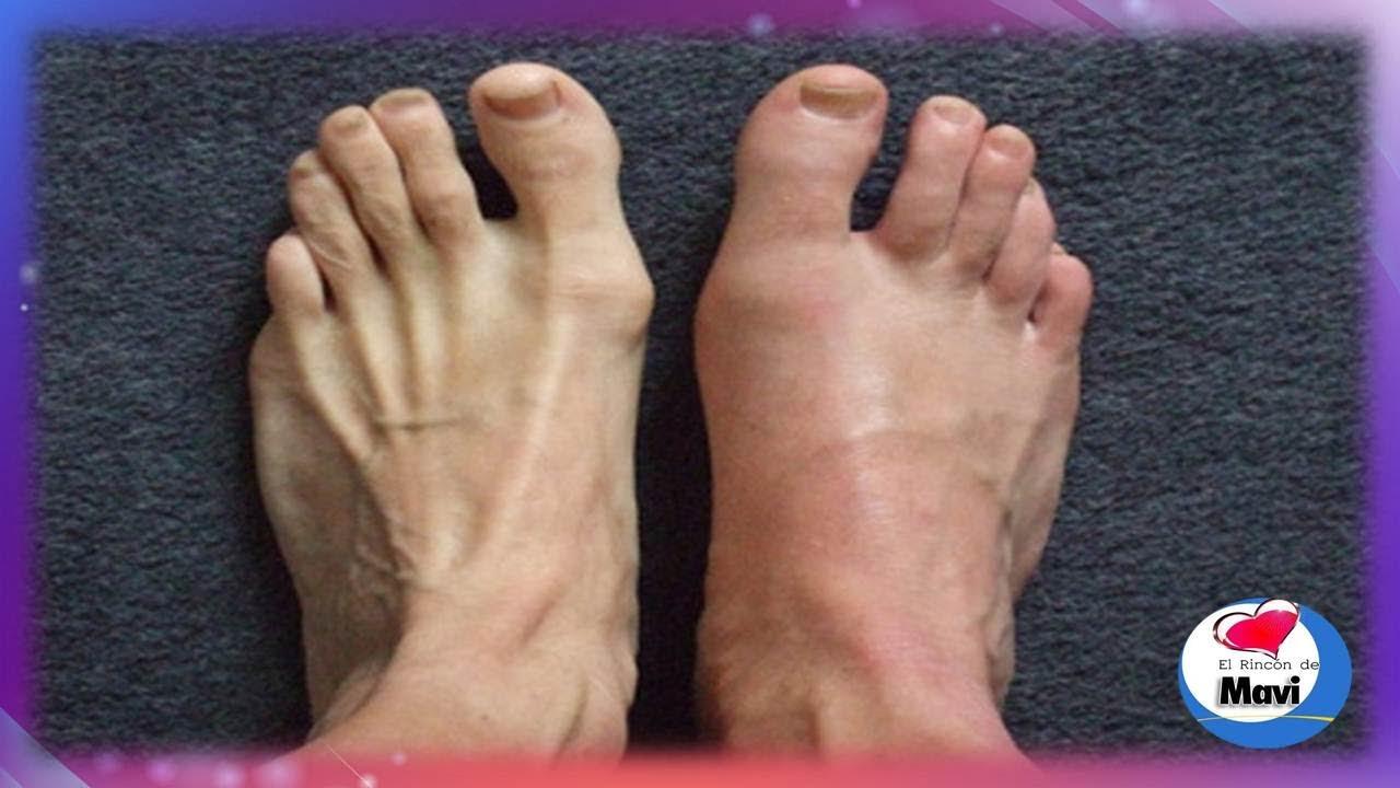Que hacer cuando se rascan los pies a la tromboflebitis