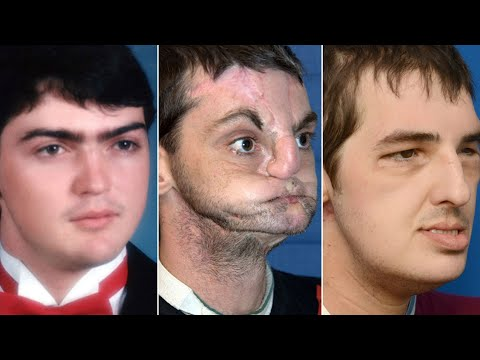 Face transplant recipient meets donor family; World's first head transplant - Compilation