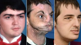 Face transplant recipient meets donor family; World