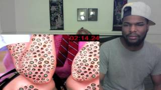 Do YOU Have Trypophobia? Reaction! & Thoughts