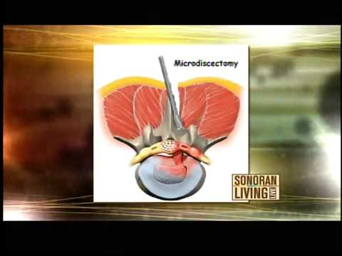 hqdefault - Lower Back Pain After Myomectomy Surgery