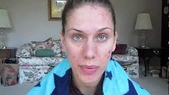 Acne Update! + RANT/RAGE. Skin Journal: Does Dairy Cause Acne: DiamondsAndHeels14 Cassandra Bankson