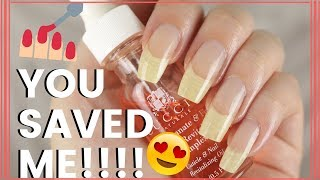 5 PRODUCTS THAT SAVED MY NAILS!!