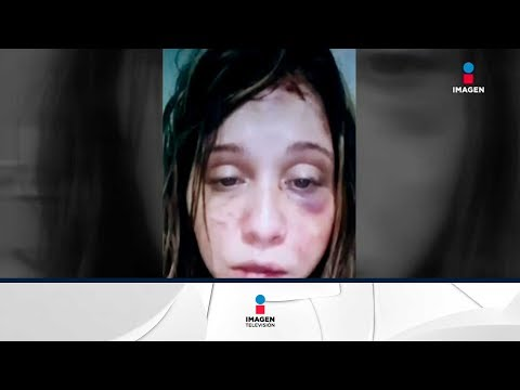 Antes De Ser Asesinada Grabó Videos Donde Lucía Golpeada Y Dijo Estar Amenazada De Muerte