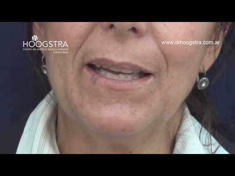 Angioma Labial - Tratamiento con Láser Fox (13017)