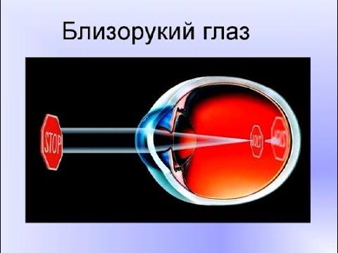 Операция на глазах от близорукости