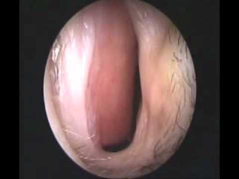 Deviation of nasal septum