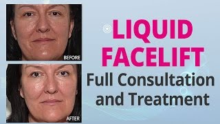 Liquid Facelift Full Consultation and Treatment | Edelstein Cosmetic Thumbnail