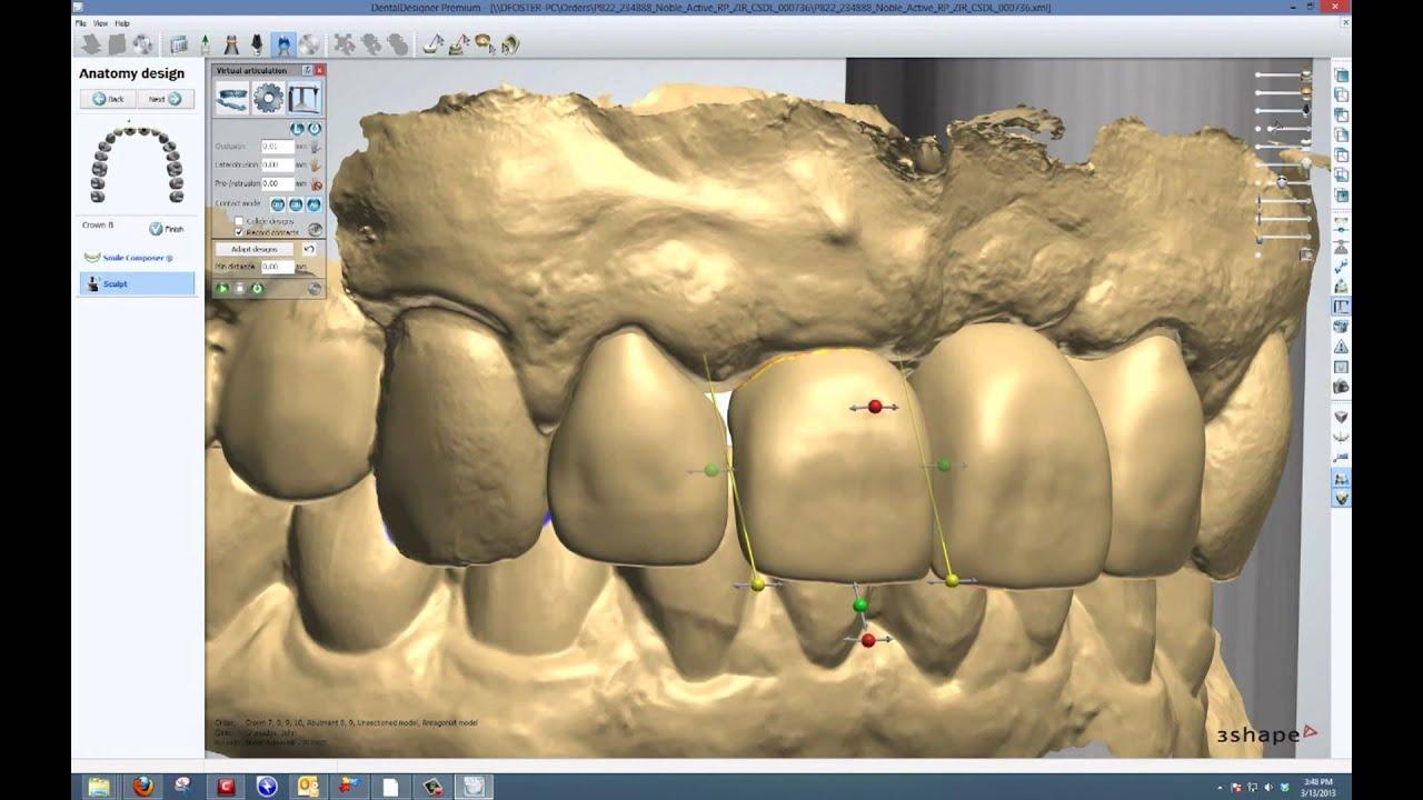 3 shape Trios implant Cornerstone dental labs - YouTube