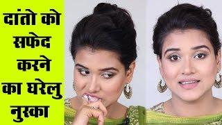 Teeth Whitening at Home (Hindi)