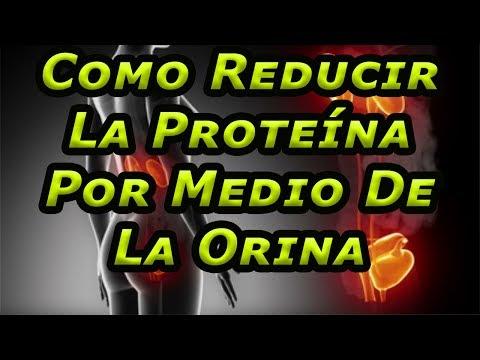 Como Reducir La Proteína Por Medio De La Orina - Si Tu Orina Es Muy Espumosa Tienes Graves Problemas