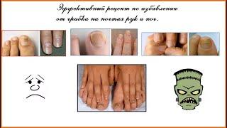 Грибок ногтей Эффективное избавление от грибка на ногтях ног и рук