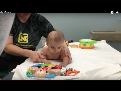 BABY GETS PHYSICAL THERAPY FOR TORTICOLLIS