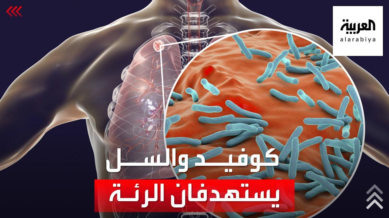 الصحة العالمية تحذر: خطر كورونا يهدد حياة هذه الفئة أكثر من غيرهم!  - 16:54-2021 / 10 / 17