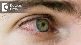 What causes a red spot  in sclera & how to  get rid of it? - Dr. Elankumaran P