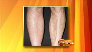 Dr. Manjoney on The Morning Blend - The Dangers of Deep Vein Thrombosis