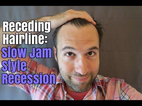slow down receding hairline