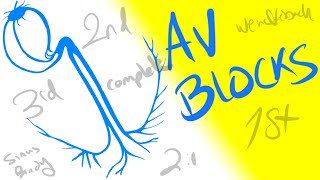 AV Blocks - 1st, 2nd and 3rd Degrees - Dr Jamal USMLE