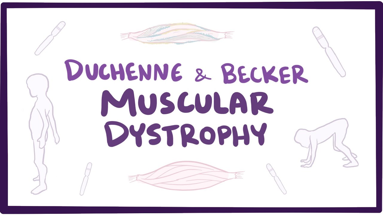 Duchenne Muscular Dystrophy Symptoms Toddlers Duchenne Becker Muscular Dystrophy Causes Symptoms Treatment Pathology