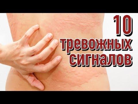 Симптомы того, что печень переполнена токсинами | Признаки забитой печени